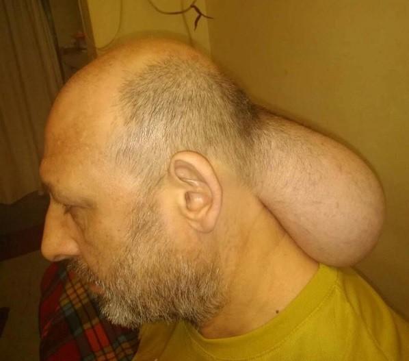 SOS από κρατούμενο των φυλακών Νιγρίτας: Έβγαλα δεύτερο κεφάλι(Εικόνες&Βίντεο)