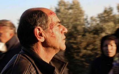 Λέσβος: Συγκρούσεις με χημικά, φωτιές και τραυματίες! Εικόνες πολέμου σε δρόμους και υψώματα(Εικόνες&Βίντεο)
