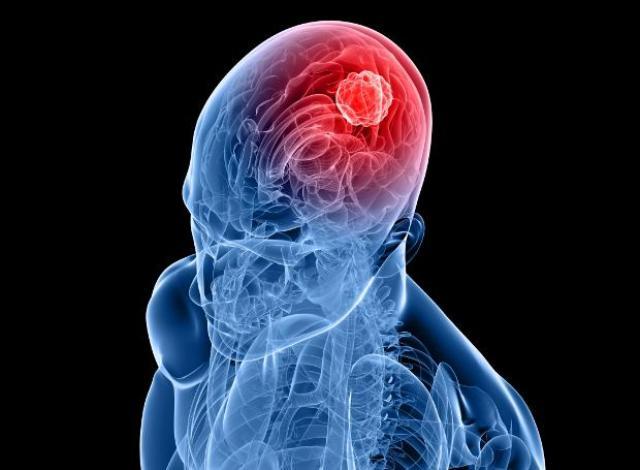 Brain_Tumor_Day