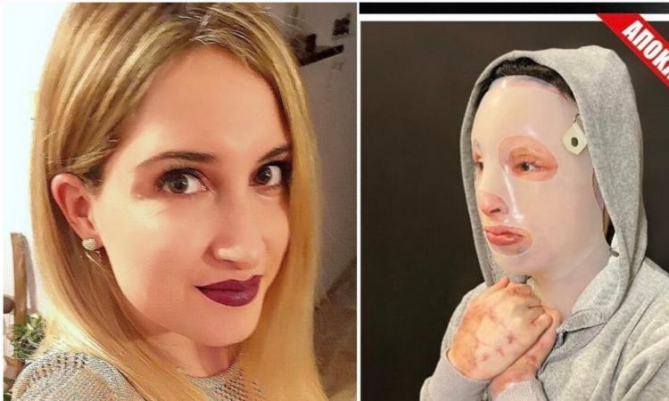 Επίθεση με βιτριόλι: Ο αδερφός της Ιωάννας μιλά για τον αγώνα που δίνει η 34χρονη